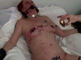 Amateurvideo Heißes Kerzenwachs auf geschundenem Körper von BunNyna